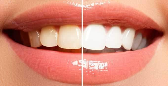 Evde dişler nasıl beyazlatılır?
